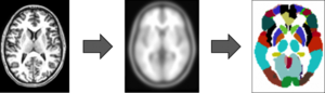 Photograph of three brains on a horizontal plane